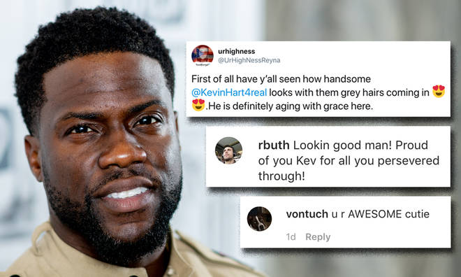 Kevin Hart praised for embracing new grey hair