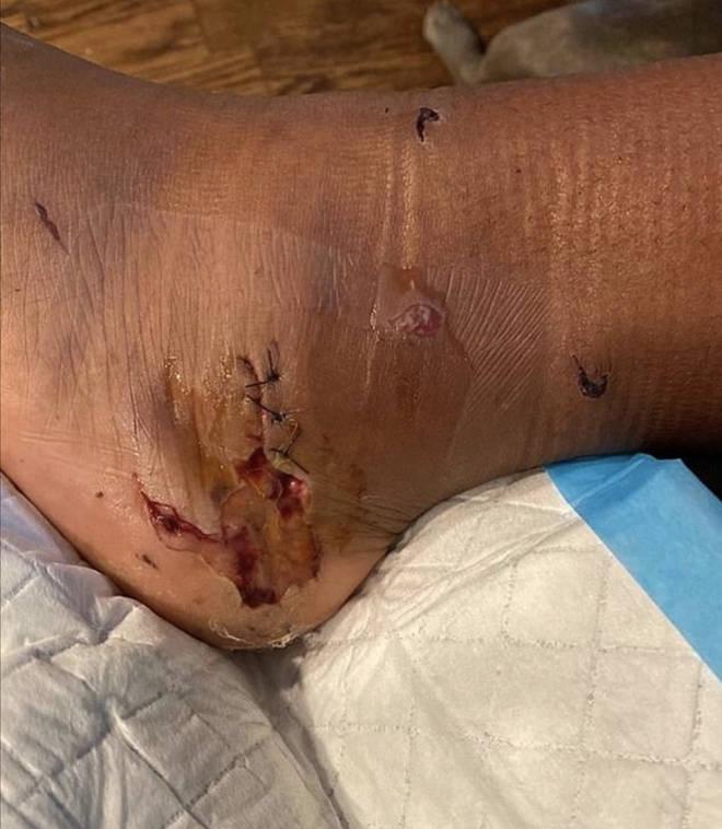 Megan Thee Stallion shares graphic photo of her gunshot wound on Instagram