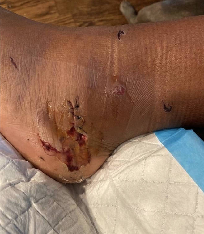 WARNING GRAPHIC: Megan Thee Stallion shared a photo of her gunshot wound on Instagram