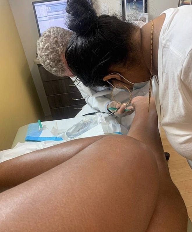Megan Thee Stallion posts photo of doctors operating on her gunshot wound
