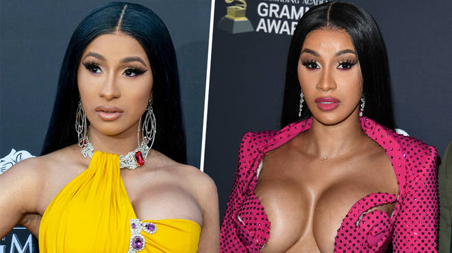 Has Cardi B had surgery? Did the rapper get a nose job?