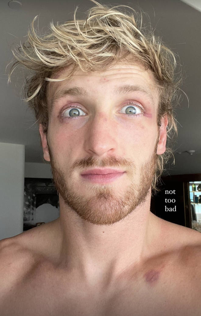 Logan Paul shares photo of his face following his fight with Floyd Mayweather.