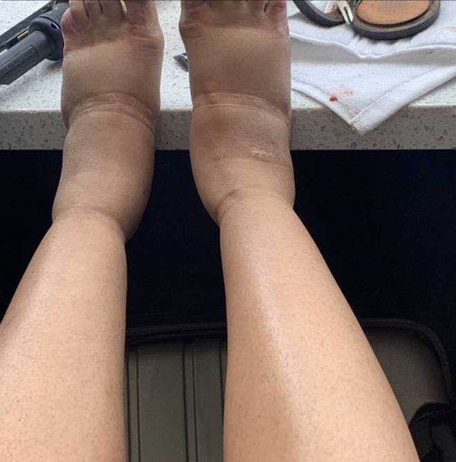 Cardi B reveals a photo of her swollen feet