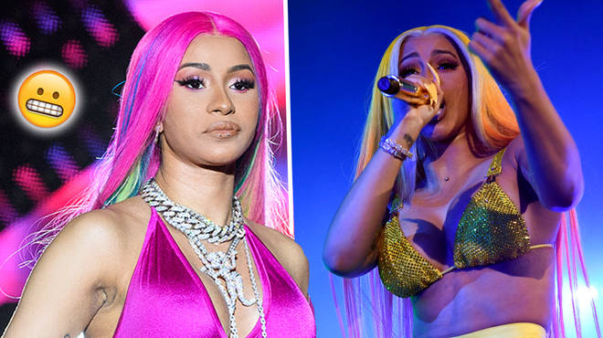 Cardi B Reveals The Effects Of Her Cosmetic Surgery With Shocking Image